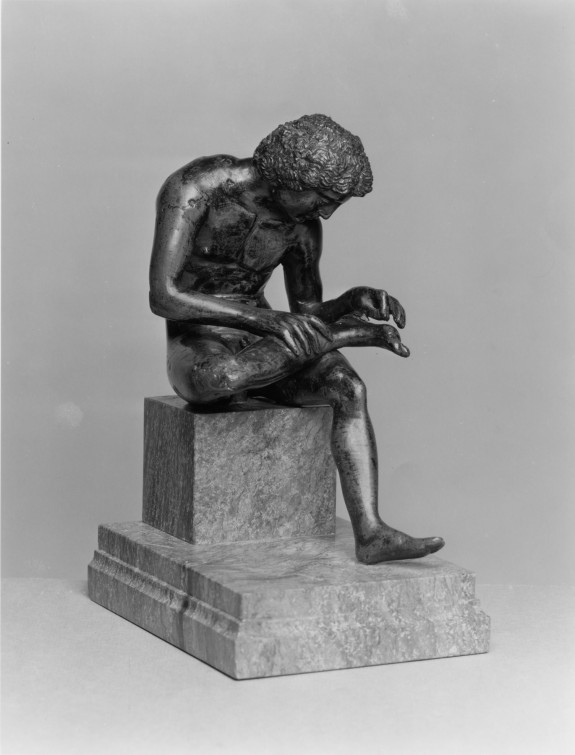 Boy Pulling a Thorn from His Foot (Spinario)